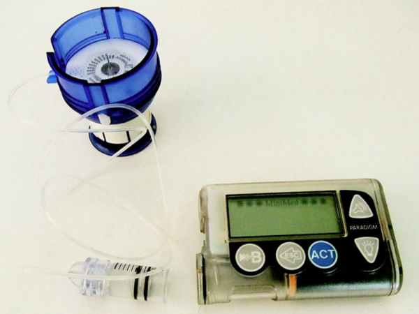 See How Valuable Insulin Pump Makes Life Better