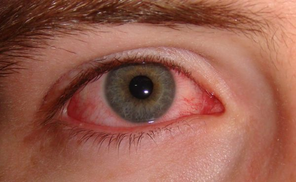 10 Effective Home Remedies for Pink Eye That Works