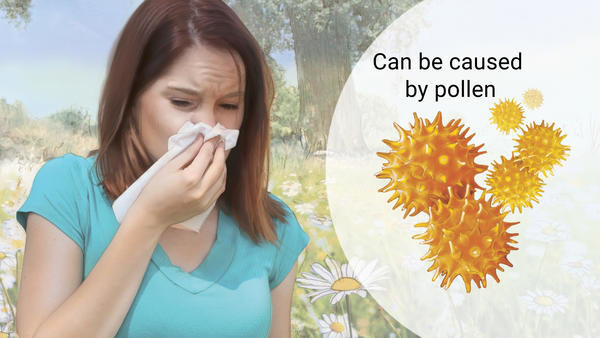 Top 8 Home Remedies for Seasonal Allergy