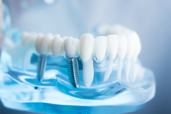 What Is Holistic Dentistry?